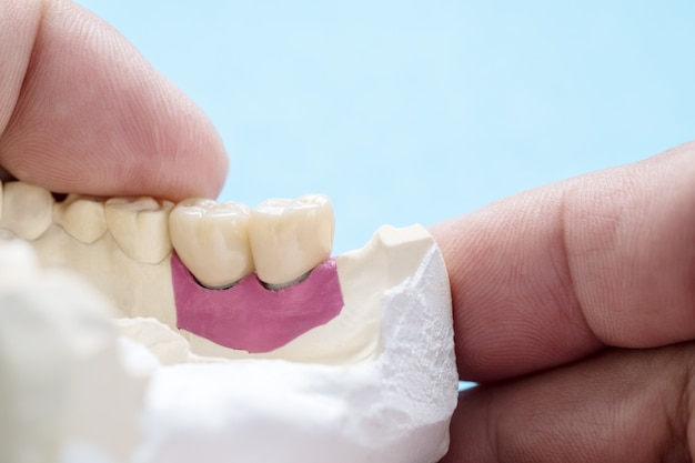 Closeup / implant prótese ou prótese / coroa dentária e ponte e implante dentário equipamentos e restauração modelo expresso fix.