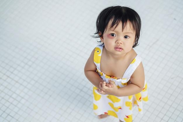 Closeup menina com o olho inchado de picada de inseto com contusão vermelha no fundo do piso em azulejos brancos