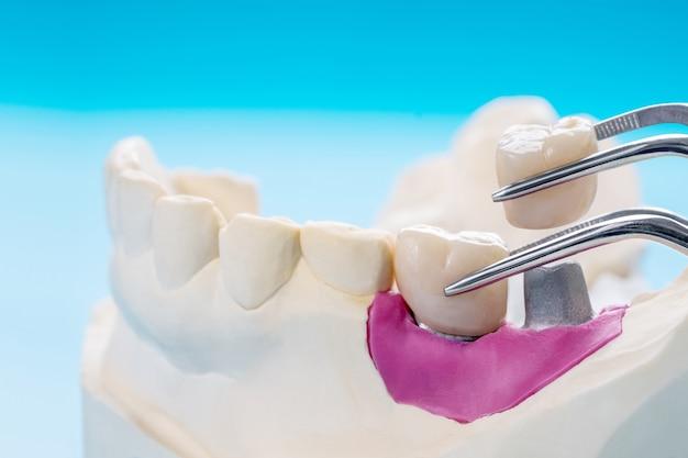 Closeup / prótese de implante ou prótese / coroa de dente e equipamento de implante de ponte e restauração modelo expresso fix.