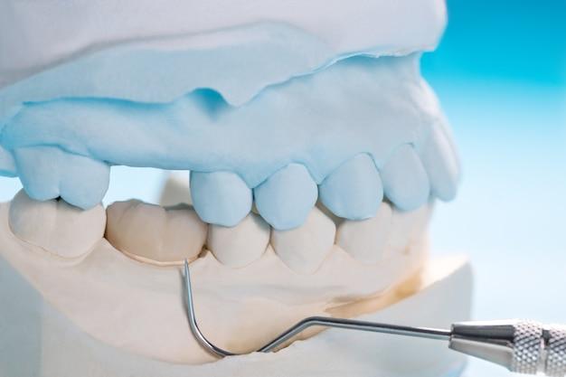 Closeup / prótese ou prótese / equipamento de coroa e ponte de dente unitário modelo de restauração de fixação expressa.