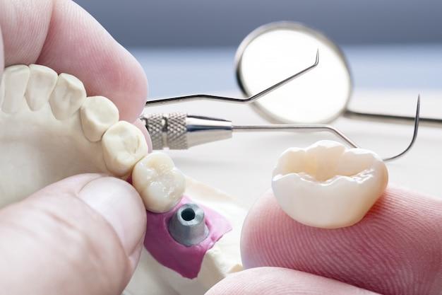 Closeup / prótese ou prótese / equipamento de coroa e ponte de dente unitário modelo restauração de fixação expressa.