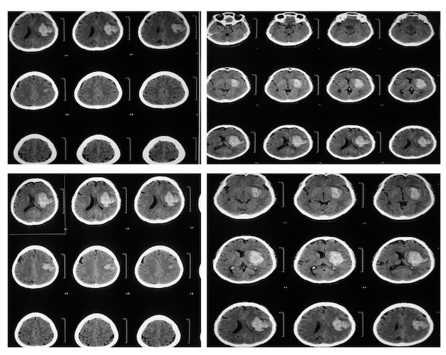 Colecção mri cérebro, filme de raio-x do cérebro, tomografia computadorizada.