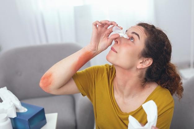 Colírio. mulher adolescente doente olhando para cima tentando manter os olhos abertos durante a autoajuda