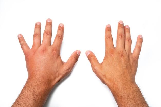 Comparação de duas mãos masculinas picadas por abelha ou vespa.