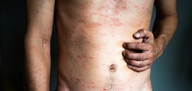 Conceito de alergia. homem sofre de irritação cutânea isolada em fundo cinza. coceira nas costas com erupção na pele