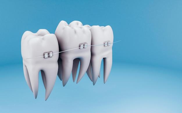 Conceito de correção de dentes do suporte