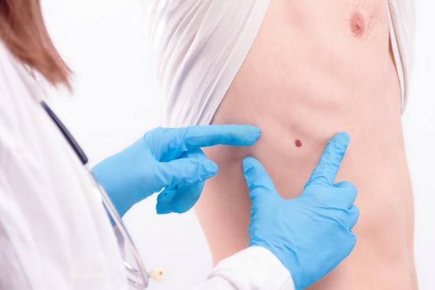Conceito de doença oncológica. médico vestindo jaleco branco e estetoscópio em luvas examinando melanoma na pele do homem.