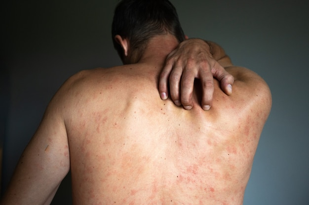 Conceito de eczema. o homem sofre de irritação cutânea isolada em fundo cinza. costas com coceira e erupção na pele