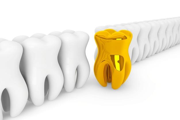 Conceito de estomatologia. dente de ouro extremo close-up em um fundo branco