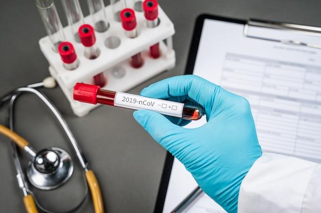 Conceito de exame de sangue de coronavírus. medique a mão segurando o tubo de ensaio com sangue para 2019-ncov analisando em laboratório. novo coronavírus originário de wuhan, china