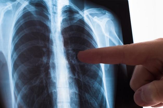 Conceito de radiografia pulmonar. médico de radiologia, examinando a radiografia de tórax do paciente câncer de pulmão ou pneumonia.