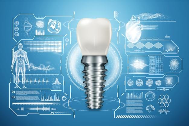 Conceito de substituição de dentes, dentaduras