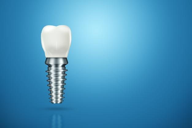 Conceito de substituição de dentes