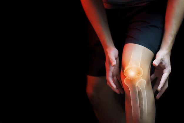 Conceito médico, homem que sofre com dor no joelho - raio-x do esqueleto