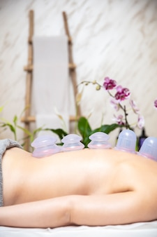 Copos aplicados na pele dorsal de uma paciente do sexo feminino como parte do método tradicional de terapia de degustação