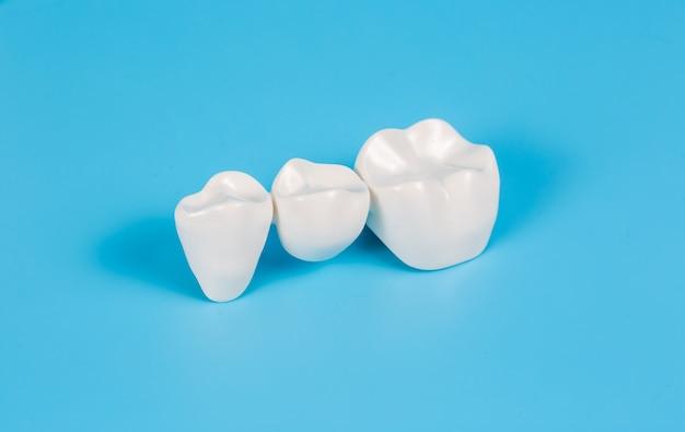 Coroas dentárias de plástico, imitação de uma prótese dentária de uma ponte dentária para três dentes em um fundo azul.