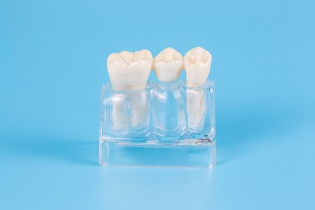 Coroas dentárias de plástico, imitação de uma prótese dentária de uma ponte dentária para um dente. auxílio visual para dentistas e pacientes.