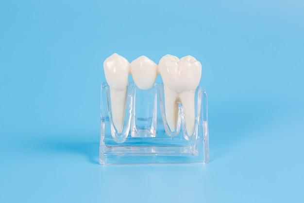 Coroas dentárias de plástico, imitação de uma prótese dentária de uma ponte dentária para um dente em um fundo azul.
