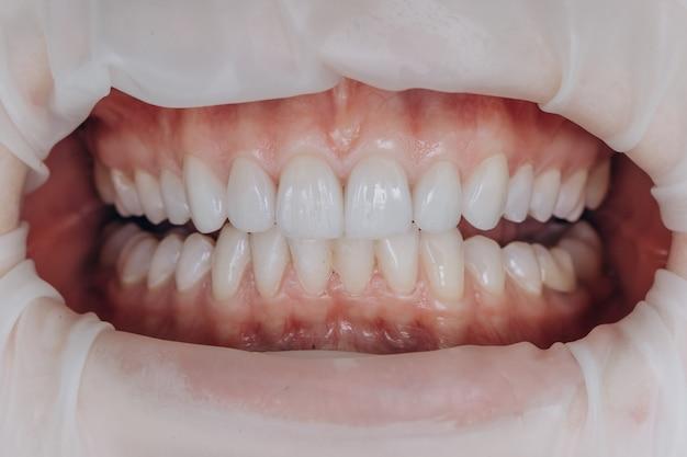 Coroas frontais em cerâmica acabadas. 8 unidades de facetas dentais.