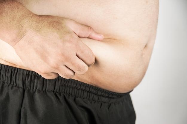 Corpo de homem com excesso de peso, com as mãos tocando a gordura da barriga