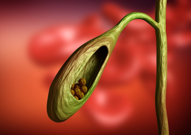 Corte da vesícula biliar que mostra cálculos biliares obstruindo o colagogo no fundo orgânico