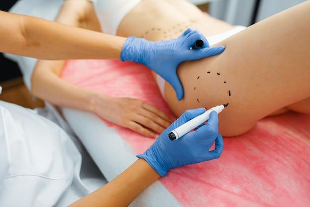 Cosmeticista com marcador coloca linhas pontilhadas no corpo da paciente do sexo feminino, preparação para injeções de botox. procedimento de rejuvenescimento em salão de esteticista. cirurgia cosmética contra rugas e envelhecimento
