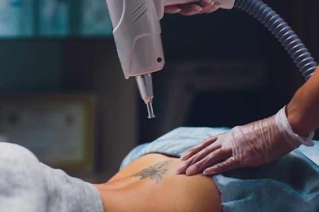 Cosmetologista fazendo laser de remoção de tatuagem profissional