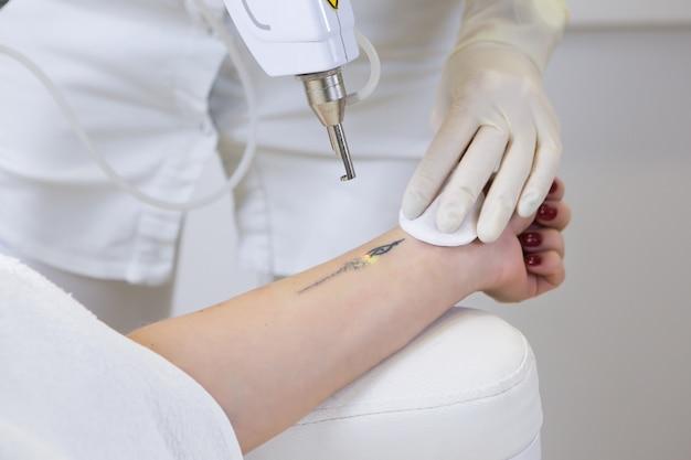 Cosmetologista fazendo remoção de tatuagem a laser