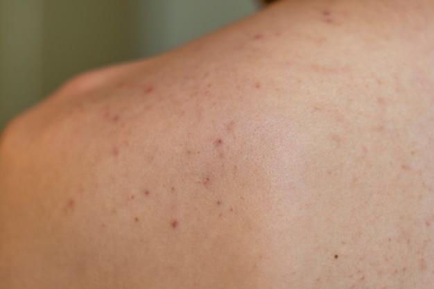 Costas de um homem com muita acne