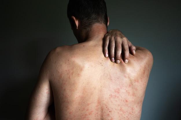 Costas do homem com varicela, coceira e queimação. complicações médicas após a doença.