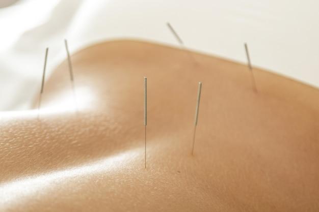 Costas femininas com agulhas de aço durante o procedimento de terapia de acupuntura