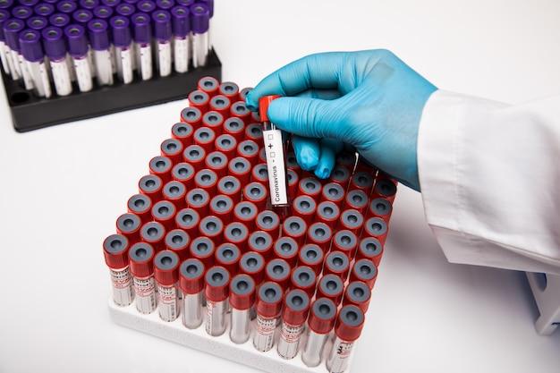 Covid 19 amostras de sangue infectadas no tubo de amostra na tabela no laboratório de pesquisa. coronavírus, pesquisa de 19 vacinas cobertas.