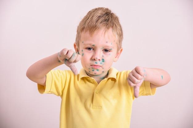 Criança pequena, menino com varicela. criança doente com varicela. vírus da varicela ou erupção cutânea com bolhas de varicela no corpo e no rosto da criança.