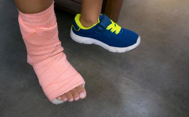 Crianças vestindo uma tala de perna quebrada de lesão