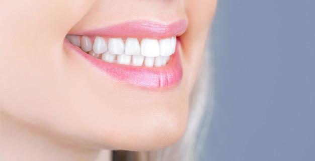 Cuidado dental. conceito de odontologia. dentes saudáveis e perfeitos. closeup tiro do sorriso dentuço de mulher. dentes saudáveis perfeitos sorriem mulher. clareamento dos dentes. conceito de saúde bucal. procedimento de clareamento dentário.