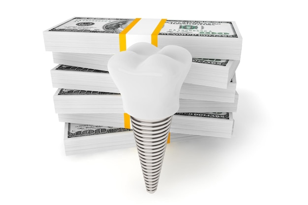 Custo do conceito odontológico. implante de dente com dinheiro em um fundo branco