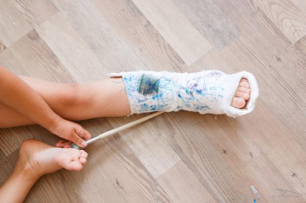 Danos na perna quebrada nos ossos uma criança pinta um gesso em uma menina com um marcador