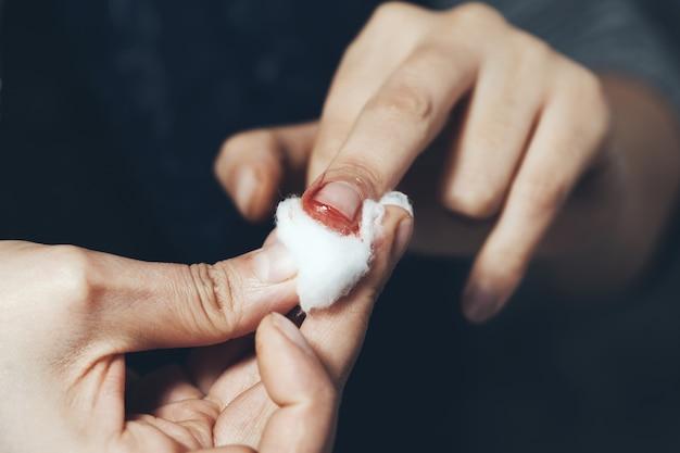 Dedo sangrento com cutton