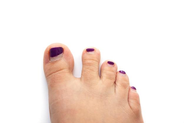 Dedos do pé com uma pedicura horrível, com rebarbas, pele áspera e seca, com verniz roxo crescido, isolado.