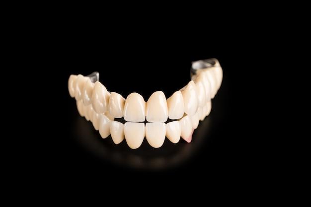 Dentadura isolada em preto