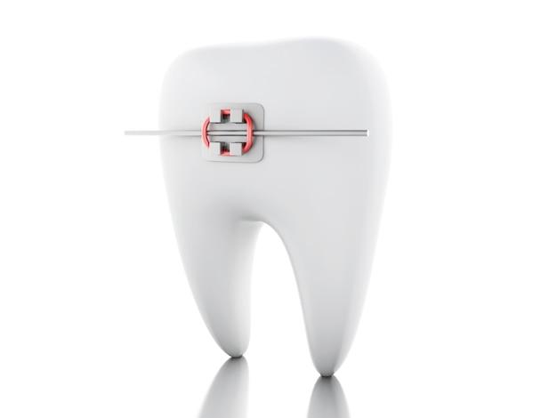 Dente 3d com aparelho.
