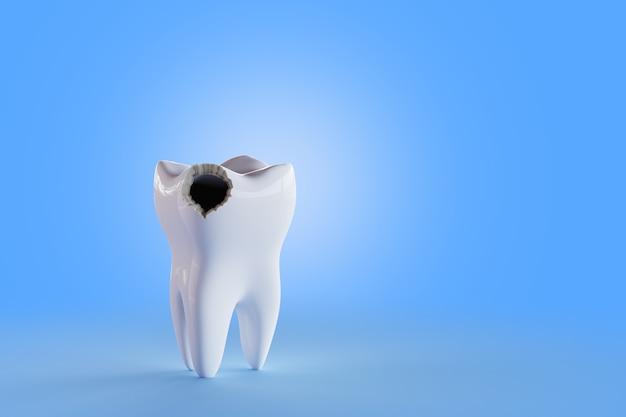 Dente com fundo de buraco azul. renderizar ilustração 3d