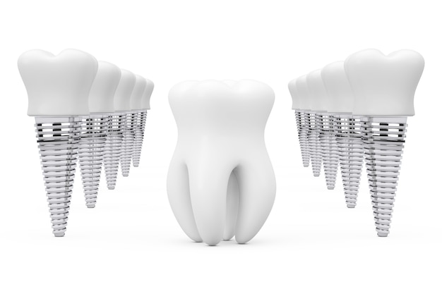 Dente saudável pré-molar entre linhas de implantes de dente em um fundo branco. renderização 3d
