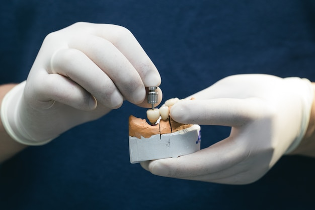 Dentes cerâmicos com implante em modelo de gesso. próteses em implantes dentários. conceito de odontologia ortopédica. ponte cerâmica sobre implantes. a mão do dentista segura uma mandíbula de gesso com abutments dentais