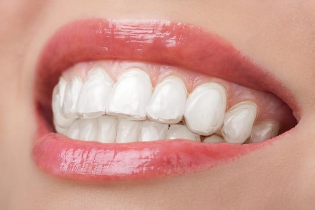 Dentes com bandeja de clareamento sorriso dental