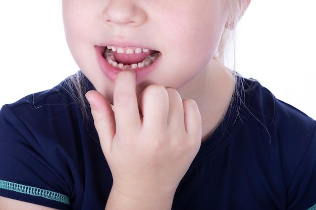 Dentes da criança com recheios. menina puxa um dente de leite