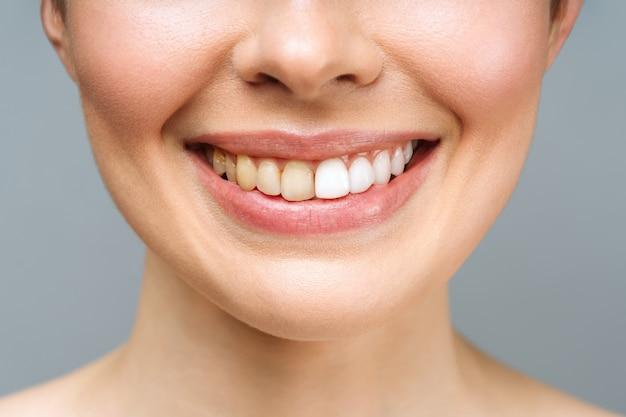 Dentes da mulher antes e depois do clareamento sobre fundo branco.