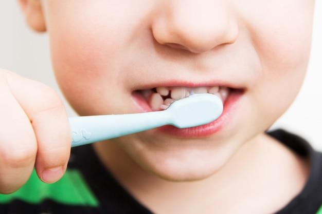 Dentes de criança com escova de dentes