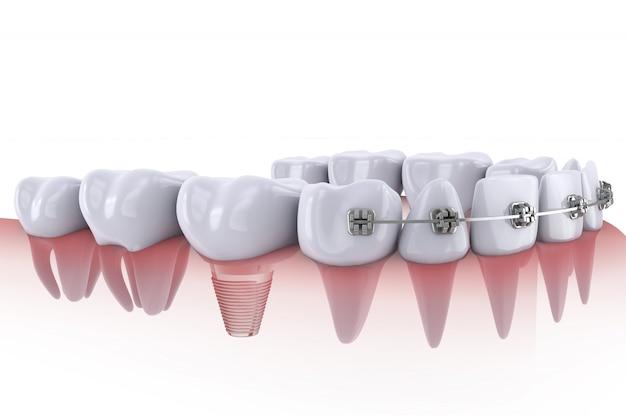 Dentes e implante