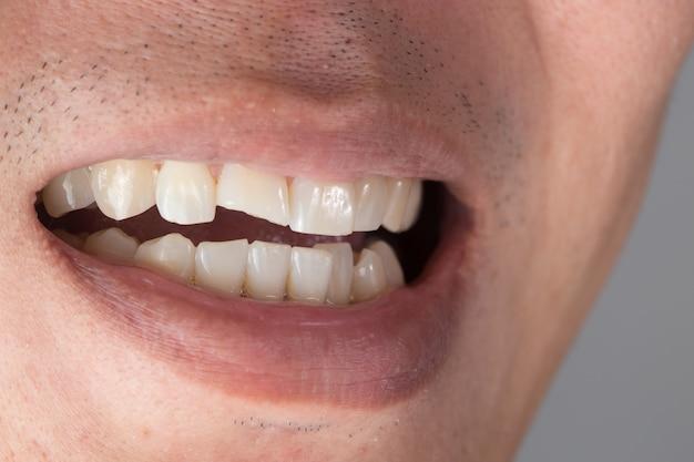 Dentes lesões ou dentes quebrando traumatismos e nervos dano do dente lesionado